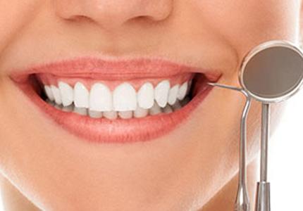 審美歯科矯正